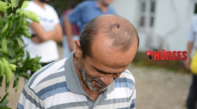 Doluya açık alanda yakalandı, başından yaralandı