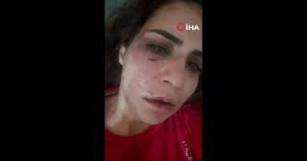 Alanya'da genç kadını darp eden eski sevgili tutuklandı
